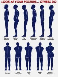 problematiche posturali 4